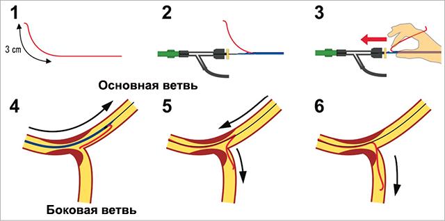 Бифуркационное стентирование