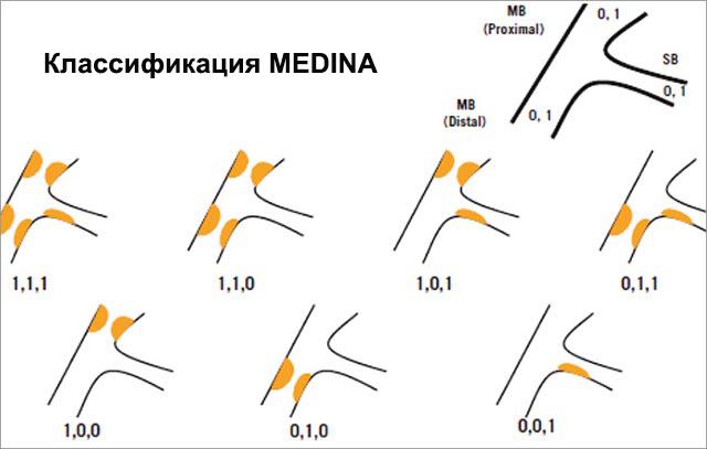 Классификация MEDINA