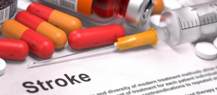 Сравнение эффективности тикагрелора и аспирина при ишемическом инсульте