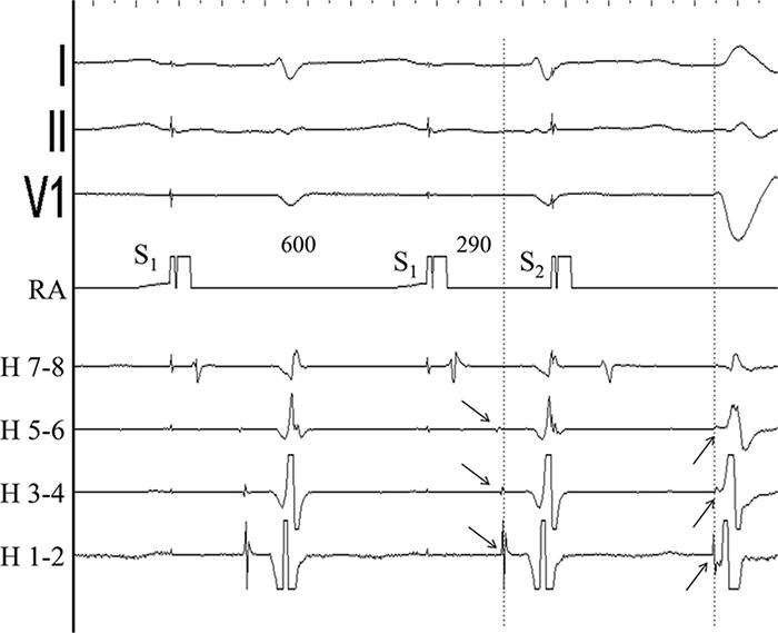 Рисунок 2. Предсердная стимуляция с экстрастимулом. После второго экстрастимула (S2) комплекс QRS расширяется, интервал HV укорачивается, последовательность активации Гиса и правой ножки - реверсирует (идет в противоположном направлении). Пунктирная линия и стрелки указывают момент изменения последовательности активации с антеградной на ретроградную. Преждевременное возбуждение с большим интервалом AV, морфологией блокады левой ножки, а также предшествующая активации желудочков активация правой ножки позволяет предположить атрио-фасцикулярный дополнительный путь. S1 - стимул базовой стимуляции, S2 - экстрастимул. Временные интервалы указаны в миллисекундах.