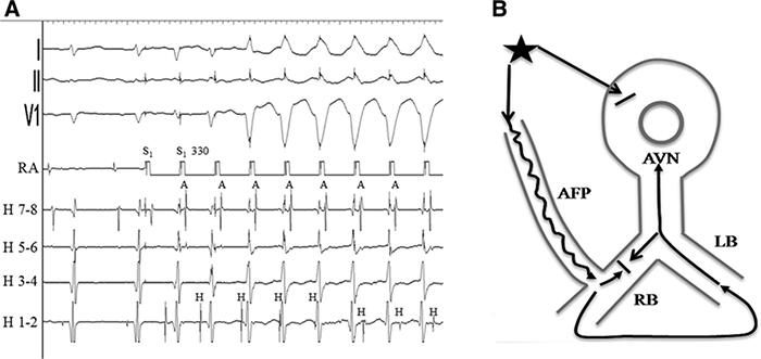 Рисунок 3. А, стимуляция правого предсердия с длинной цикла 330 мс. А, Н и V-электрограммы отмечены. Обратите внимание на укорочение интервала HV и фьюжн (слияние) QRS в третьем стимулированном комплексе, ретроградную активацию Гиса по правой ножке в четвертом и пятом комплексах и внезапный скачок к форме V-H в шестом стимулированном комплексе, что указывает на ретроградный блок в правой ножке и проведение по левой ножке (пучка Гиса). В, схематическая диаграмма механизма изменения соотношений A, H и V в последних 3 комплексах в предыдущей части (А). Предсердная стимуляция приводит к антероградному блоку в АВ-узле, антероградному проведению по атрио-фасцикулярному пути и ретроградному блоку правой ножки. Гис активируется ретроградно по левой ножке. А - предсердия, AFP - атрио-фасцикулярный путь, AVN - АВ-узел, Н - Гис, LB/RB - левая/правая ножки пучка Гиса.