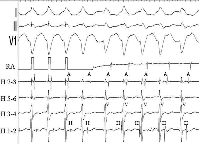 Рисунок 4. Предсердная стимуляция запускает тахикардию с морфологией блокады левой ножки, вариабельной длинной цикла и вариабельным соотношением между сигналами А, Н и V. А - предсердия, RA - правое предсердие, V - желудочки, Н - Гис.