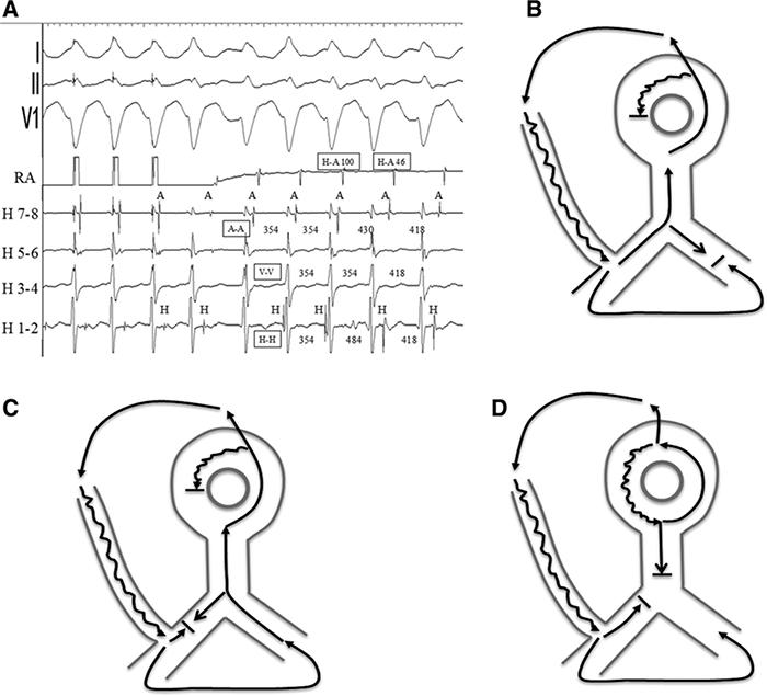 Рисунок 5. А, электрограммы интервалов на рисуноке 4. Все интервалы в миллисекундах. B-D - схематическое изображение изменений в цепочке тахикардии. А, В - первые 3 комплекса тахикардии. После прекращения предсердной стимуляции антероградное проведение продолжается вниз по атрио-фасцикулярному пути с ретроградным проведением по правой ножке, замыкая цепь. С - четвертый и пятый комплексы тахикардии, где происходит ретроградный блок в правой ножке и транссептальное проведение и актиация левой ножки - что формирует ретроградный путь тахикардии. D - альтернативный вариант двойной физиологии АВ-узла во время АВУРТ с неманафестирующим атри-фасцикулярным путем проведения (в качестве bystander).