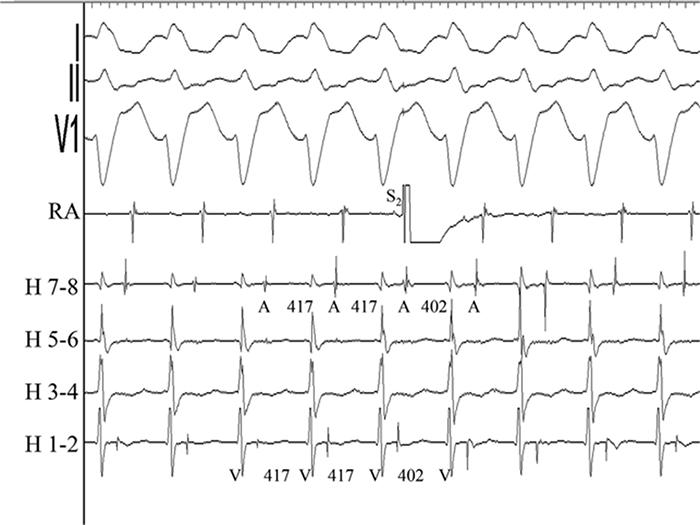 Рисунок 6. Преждевременный предсердный комплекс (экстрастимул, S2), нанесенный во время рефрактерности предсердной стенки (перегородки) во время тахикардии с длинным V–H вызывает активацию желудочков и предсердий.