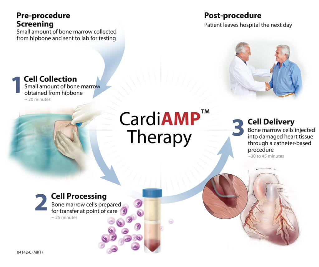 Технология CardiAMP